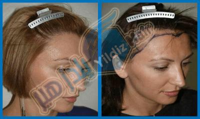 زراعة الشعر للسيدات في مشفى يلدز هير لزراعة الشعر في تركيا اسطنبول زراعة الشعر للنساء في مشفى يلدز هير لزراعة الشعر في تركيا اسطنبول