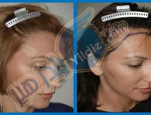 علاج تساقط الشعر بالبلازما الغنية بالصفائح الدموية PRP