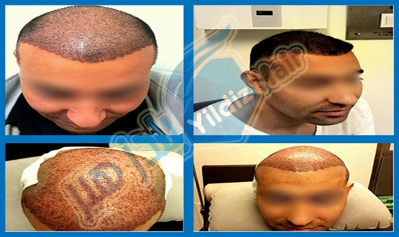 زراعة الشعر في تركيا مشفى يلدز هير لزراعة الشعر في تركيا اسطنبول زراعة الشعر - زراعة اللحية - زراعة الشارب - زراعة الحواجب