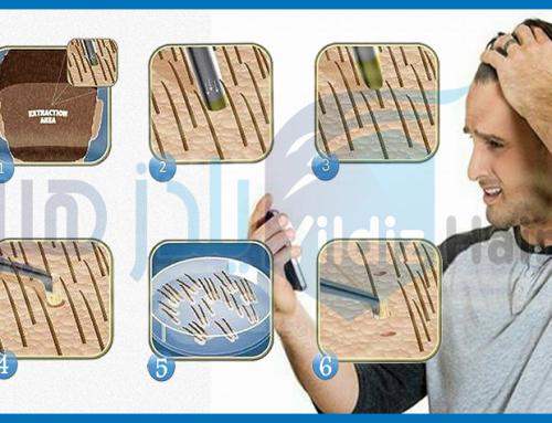 مراحل زراعة الشعر بتقنية الإقتطاف FUE – زراعة الشعر في تركيا