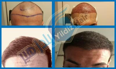 مشفى يلدز هير لزراعة الشعر في واللحية والحاجب في تركيا