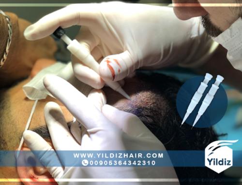 زراعة الشعر بتقنية DHI أقلام تشوي (choi implanter)