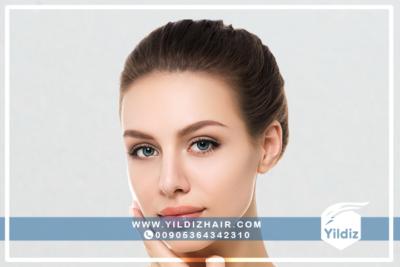 معلومات حول عملية زراعة الشعر للنساء 4