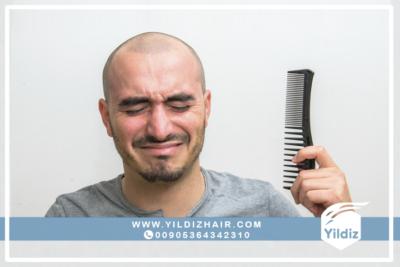 معلومات حول عملية زراعة الشعر للنساء 2