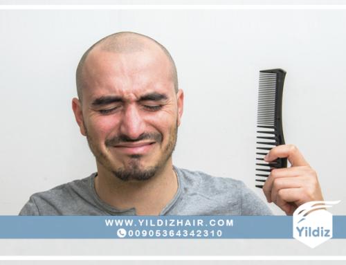 معلومات حول عملية زراعة الشعر للرجال