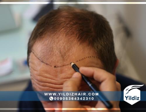 نتائج عمليات زراعة الشعر في تركيا – يلدزهير – 9