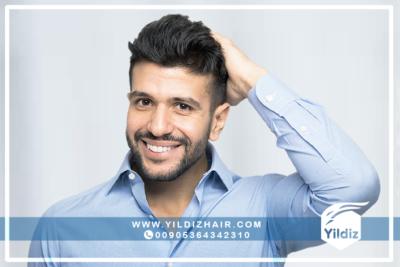 معلومات حول عملية زراعة الشعر للنساء 8