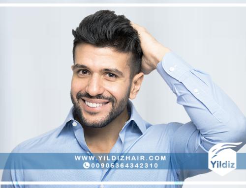 فوائد وأضرار  زراعة الشعر