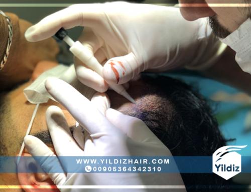 نتائج عمليات زراعة الشعر في تركيا – يلدزهير – 5
