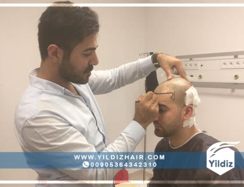 نتائج عمليات زراعة الشعر في تركيا – يلدزهير – 4
