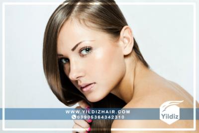 معلومات حول عملية زراعة الشعر للنساء 1