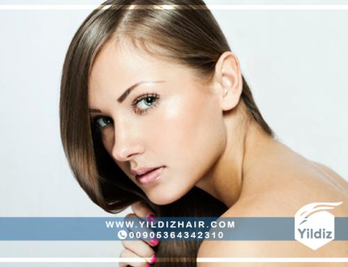 معلومات حول عملية زراعة الشعر للنساء